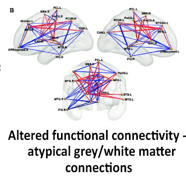 Altered functional connectivity in autism due to atypical grey / white matter connections before treatment with neurofeedback