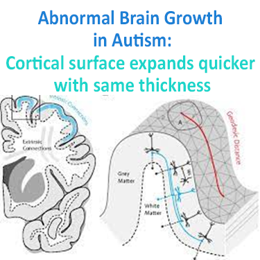 Abnormal Brain Growth in Autism due to cortical surface expanding quicker with same cortical thickness and its relation to neurofeedback