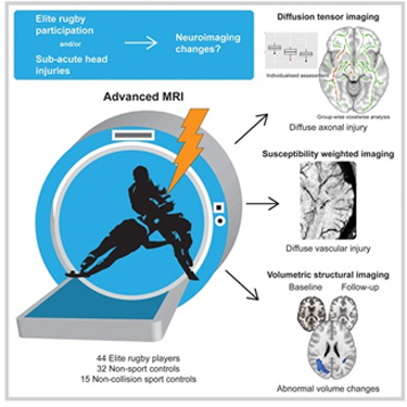 Drake Foundation study on brain abnormalities in rugby players using diffusion tensor imaging and advanced MRI