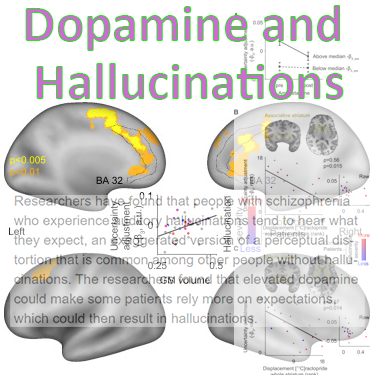 Dopamine and Hallucinations linked by researchers from Columbia University Medical Center https://www.sciencedaily.com/releases/2018/02/180216142646.htm