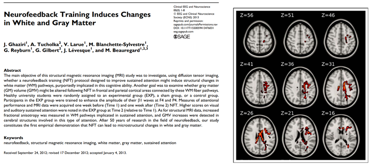 Neurofeedback Personalised Brain Training induces changes in white and gray matter, Ghaziri study 2013