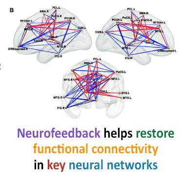 Neurofeedback helps restore functional connectivity in key neural networks