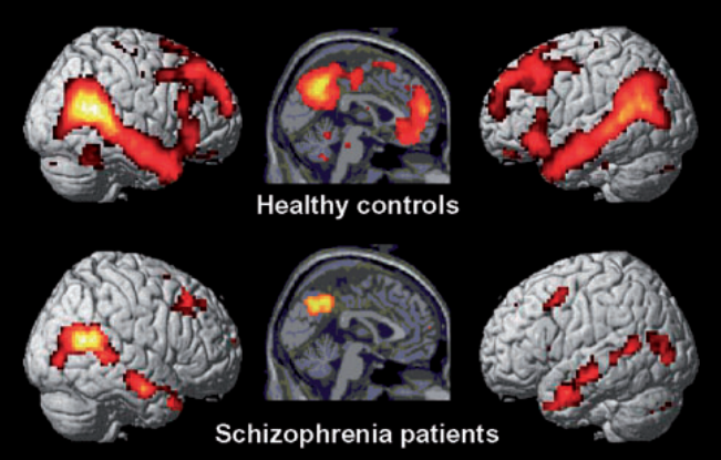 Schizophrenia fMRI Brain shows diminished Default Mode Network Difference