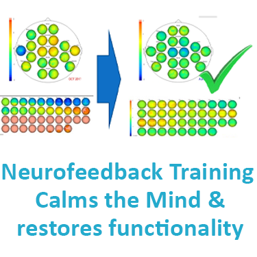 Neurofeedback Training calms the mind and restores functionality and functional connectivity through personalised brain training in autism