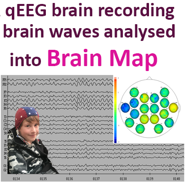 qEEG recording of brain waves is analysed to generate a brain map in form of a Kaiser Neuromap