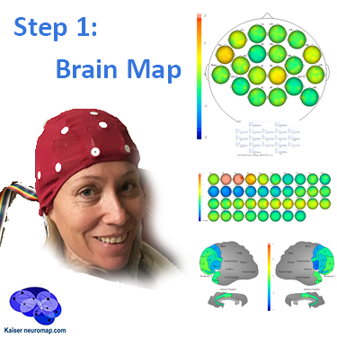 Kaiser Neuromap qEEG recording forms basis for neurofeedback personalised brain training